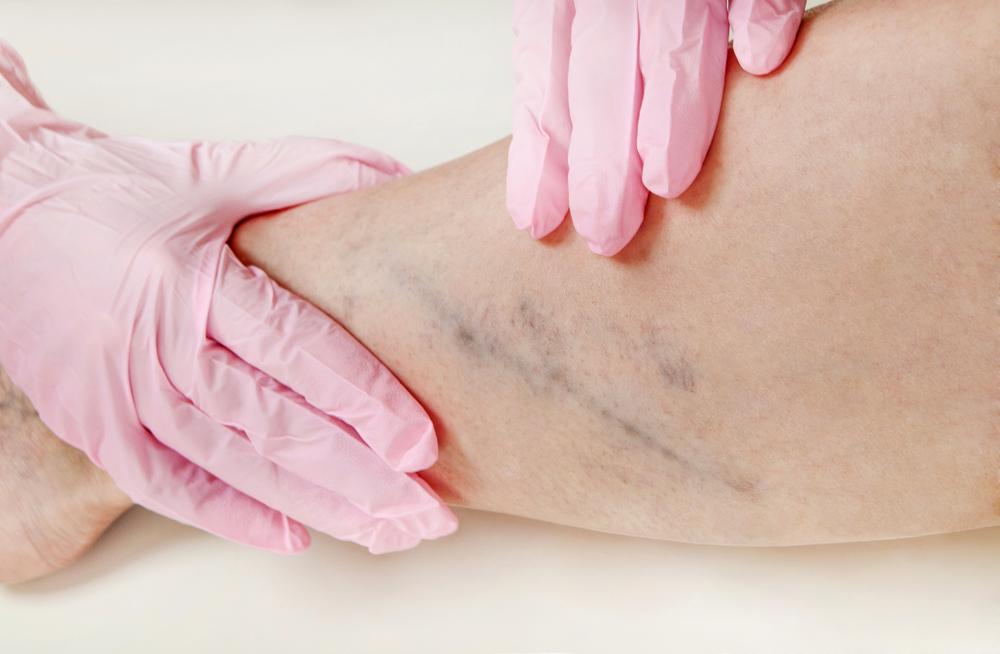 chirurgia vascolare terapia