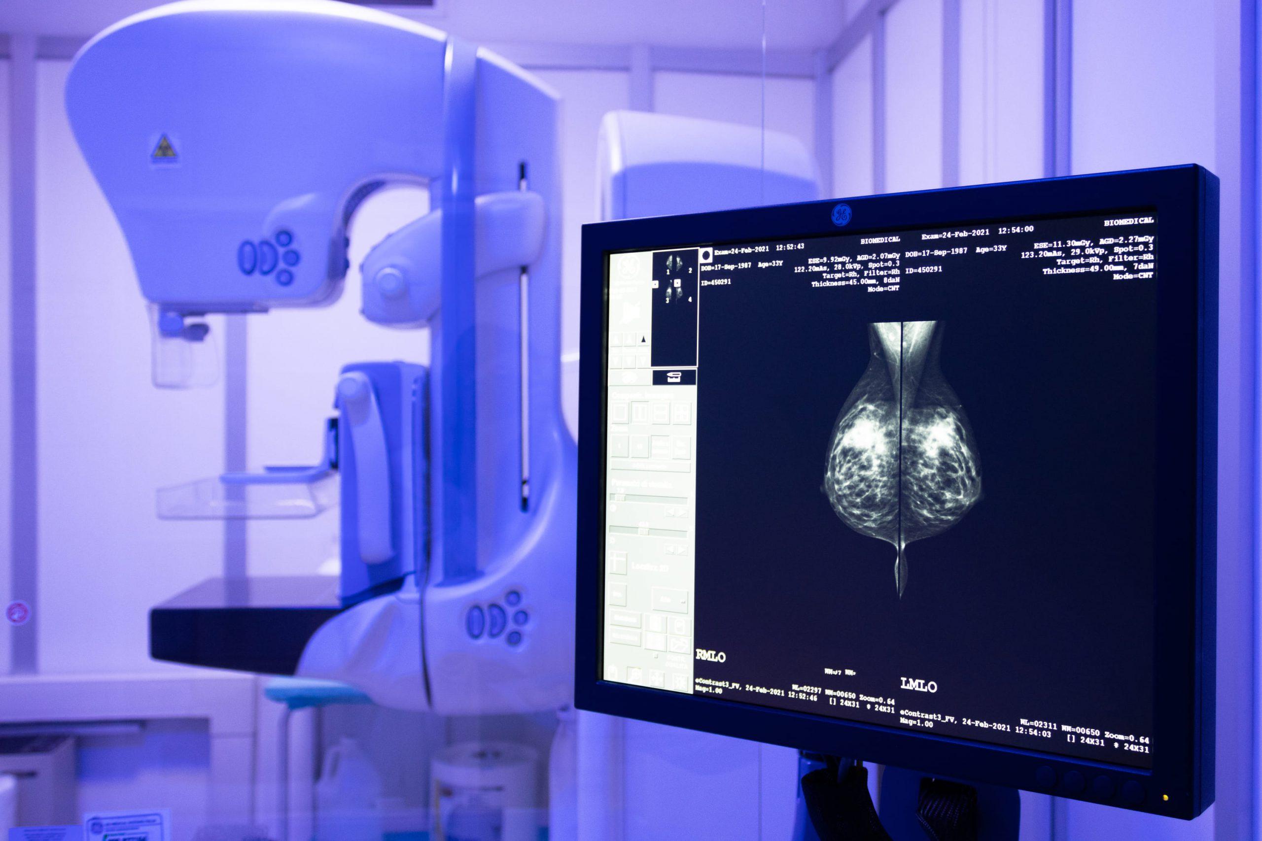 mammografia radiologia